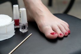 How to find a way to get rid of Toenail Fungus