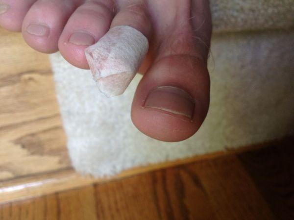 Tape - Prevent Blisters from Running