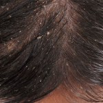 How Often Should i Wash my Hair if I Have Dandruff?