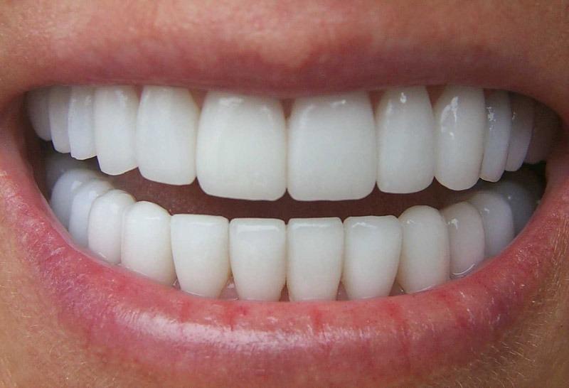 Resultado de imagem para dentes