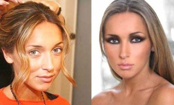 До и после артисты: Фото до и после пластики звезд ...