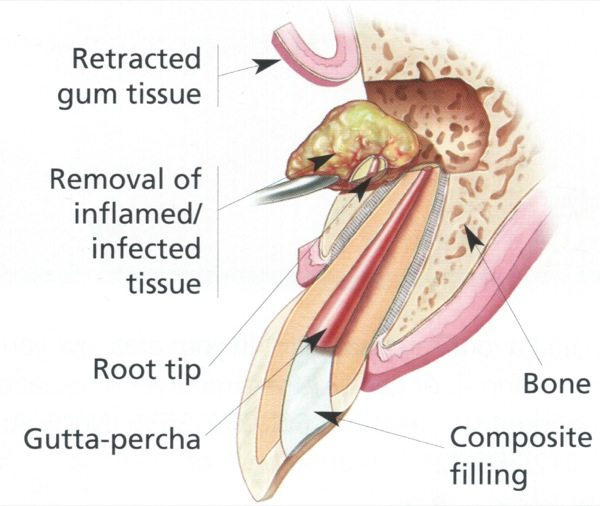 Endodontic Surgery / Root Canal Therapy