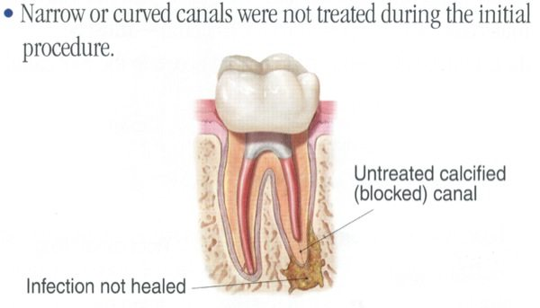 Endodontic Retreatment / Root Canal Therapy