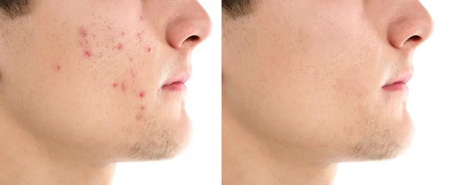 Huile de nigelle, un traitement naturel contre l'acné