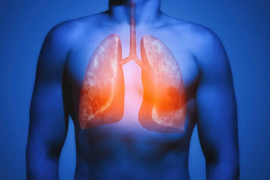 Comment utiliser l'huile de nigelle pour améliorer son asthme