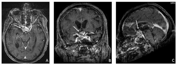 Nf Optic Nerve Tumor