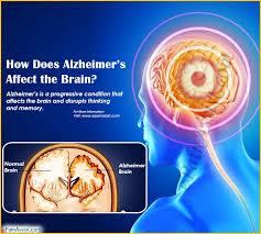How does Alzheimer's disease affect the human brain