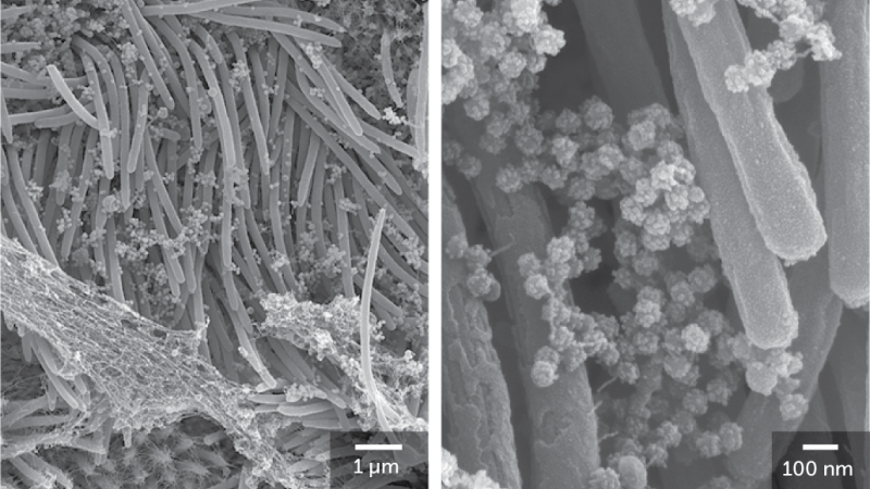 black and white microscope images of round coronavirus particles coating the hairlike cilia of a lung cell