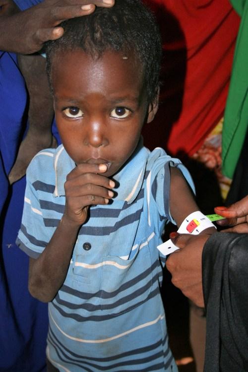 child arm measurement food crisis in Somalia