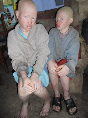 albino-children_Humanity-Healing_International