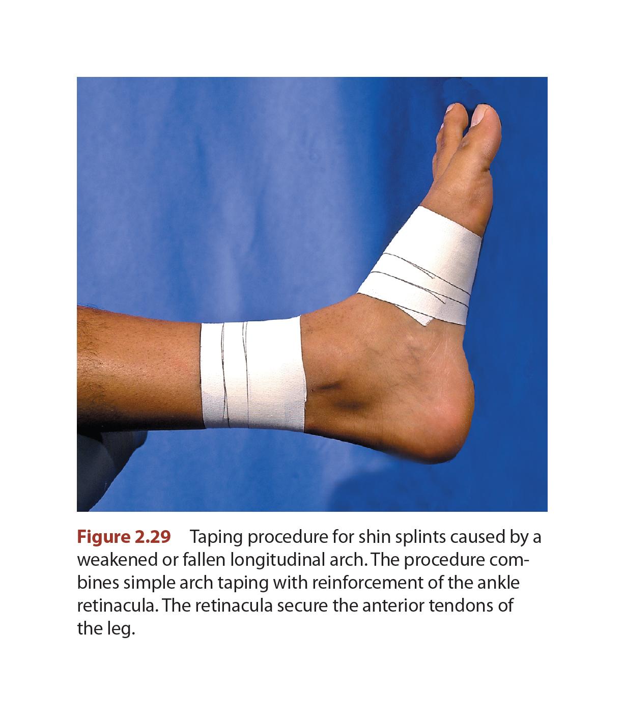 Shin Splints - Taping Techniques