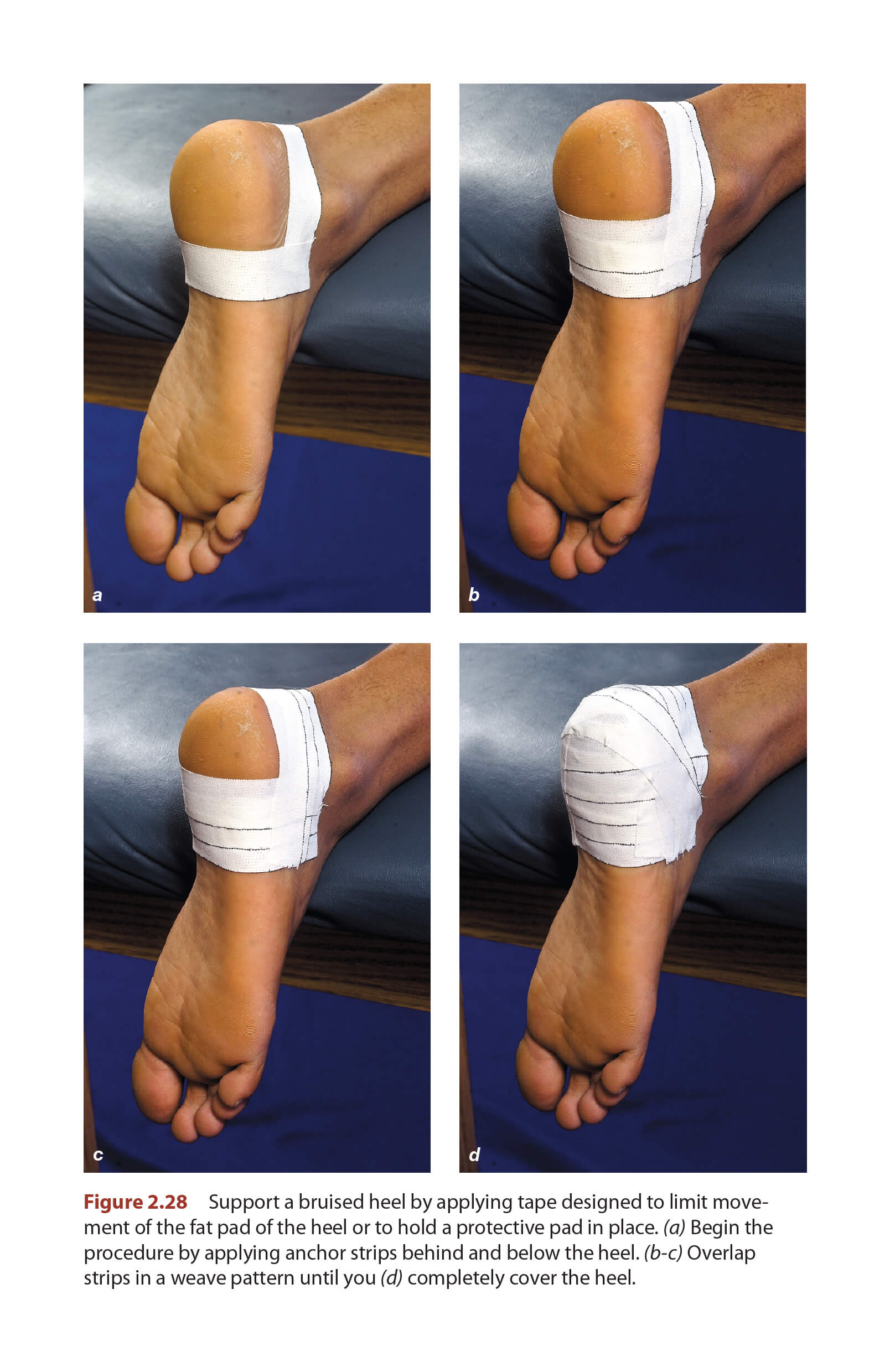 Shin Splints - Taping Techniques | Human Kinetics Blog