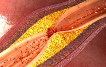 Coronary Artery Disease Overview | Health Conditions | Healthy Lifestyle | Humarian Health Blog