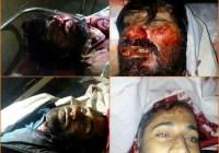 خضدار،زہری میں قابض پاکستانی فوجیوں کی فائرنگ دوبلوچ نوجوانوں کی شہادت کی اطلاع