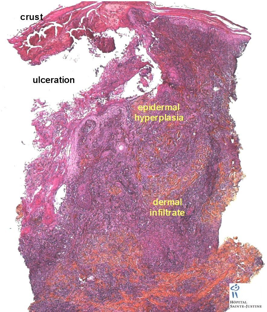 Cutaneous Leishmaniasis Humpath Com Human Pathology
