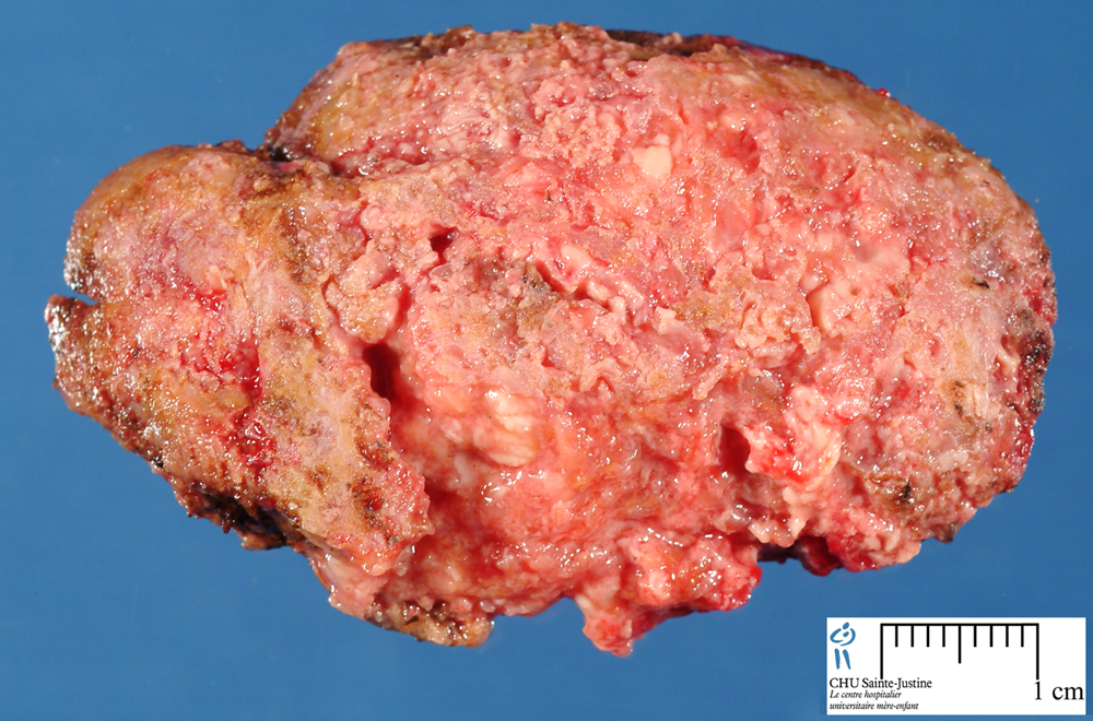 Tthe Fungal Infection Liver