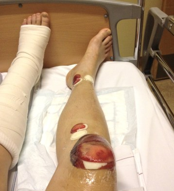 One leg with an intramedullary nail in it.
