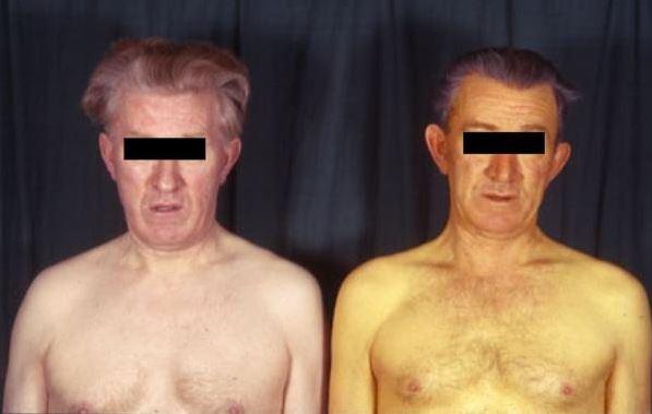 Фото людей с гепатитом С: больных, глаз, печени, кожи ...