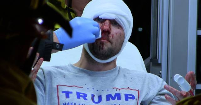Image result for BLOODIED TRUMP Supporter