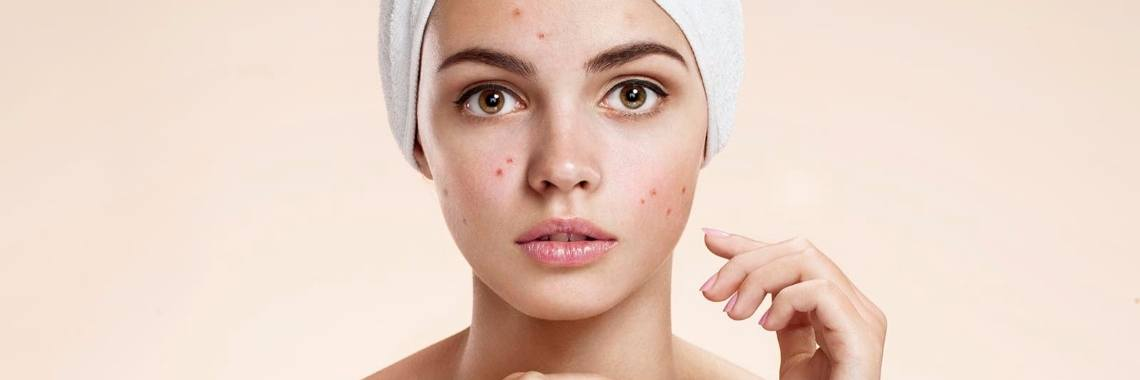 10 tips om acne te voorkomen