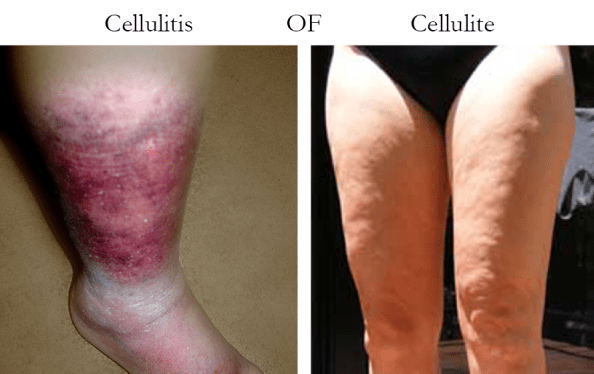 cellulitis of cellulite
