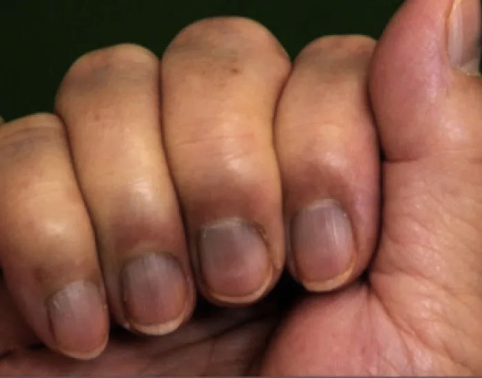 The Half-Moon Shape On A Person\'s Nail Could Reveal A Lot About ...