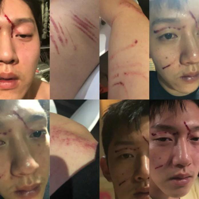 Goo Hara's Ex-Boyfriend Unveils Shocking Photos Of His Own Assault