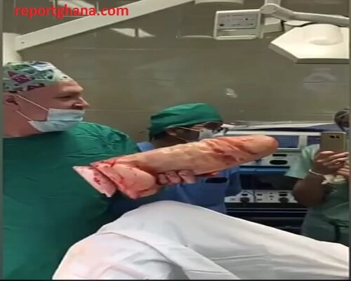 Viewers Discretion: Woman undergoes surgery to remove Huge Dildo Stuck in her V@gina [WATCH VIDEO 18+]