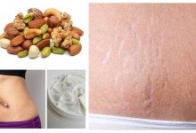 Foods To Permanently Remove Stretch Marks
