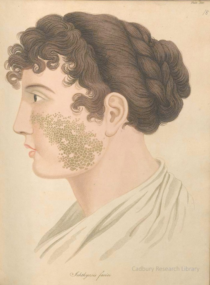 Ichthyosis faciei, from Thomas Bateman's 'Delineations of Cutaneous Diseases' (1828)