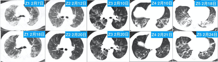 (pic 4) CT changes before and after 4-7 HBOT in 5 patients