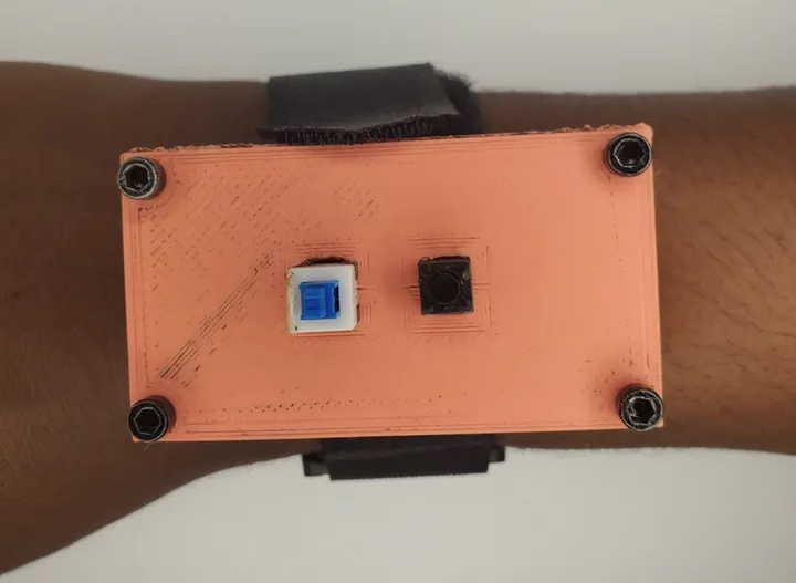 this wearable device sends an alert whenever it detects a fall hyperedge embed image