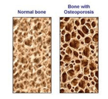 what is osteoporosis