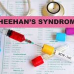 all about sheehans syndrome