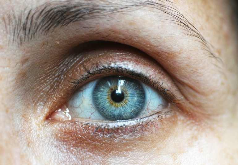 semne cataracta