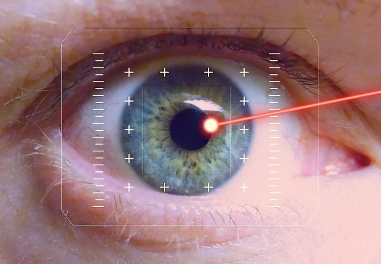 iridotomia laser glaucom