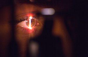cancer de ochi