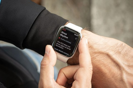 The Fitbit Sense will match the Apple Watch's ECG capabilities next month
