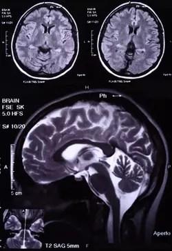 les deux hémisphère du cerveau ont des fonctions différentes