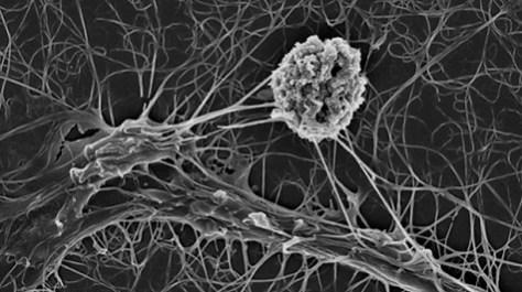 Omprogrammerade cancerceller 475