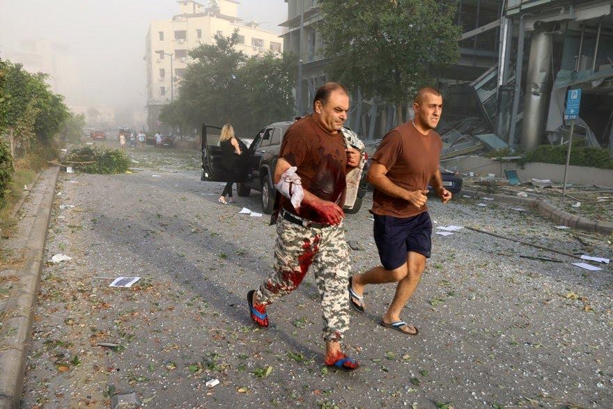Patlamanın ardından kan revan içinde kalan binlerce insan sokakta yakınlarını aradı.