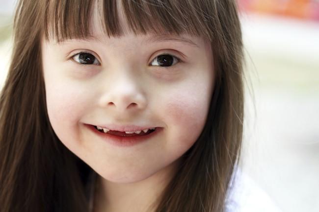 niña-con-sindrome-de-down