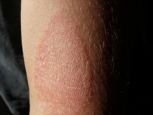 Dermatitis atópica: por qué aparece y cómo debes cuidarte si la padeces