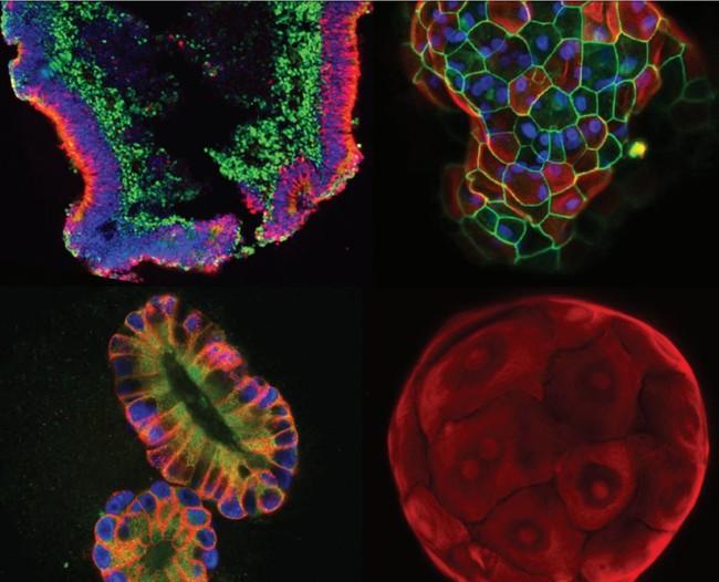 Permalink to Estos robots están cultivando órganos microscópicos para encontrar nuevos tratamientos contra enfermedades imposibles