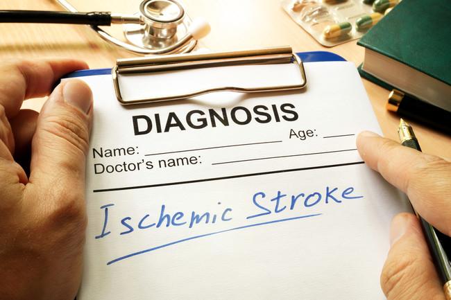 Diagnostico Acv: es vital saber diagnosticarlo a tiempo