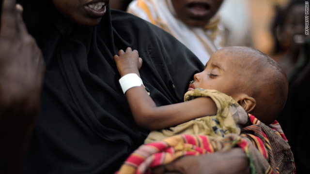 An emaciated child is among the displaced Somalis at the Dadaab refugee complex last month in eastern Kenya.