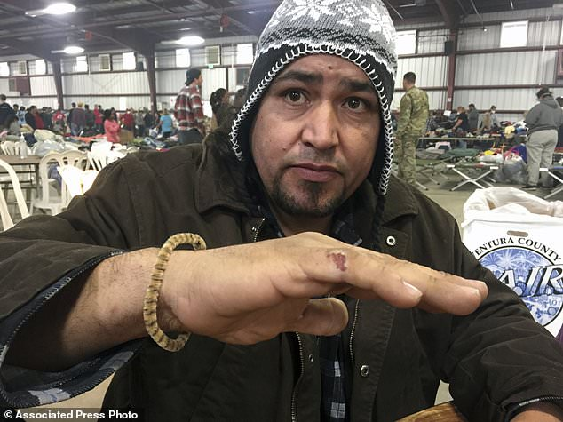 Wildfire survivor Hugo Romero-Rodriguez shows a hand burn as he sits inside the evacuation center with his family at the Ventura County Fairgrounds in Ventura, Calif. Their family RV burned up with all their possessions in Ventura, Calif. Wind-driven fires have raced through California communities for the second time in two months, leaving hundreds of homes feared lost and uprooted tens of thousands of people. The most damaging fire is in Ventura County northwest of Los Angeles, where more than 100 square miles (259 sq. kilometers) and numerous homes have burned. (AP Photo/Amanda Lee Myers)