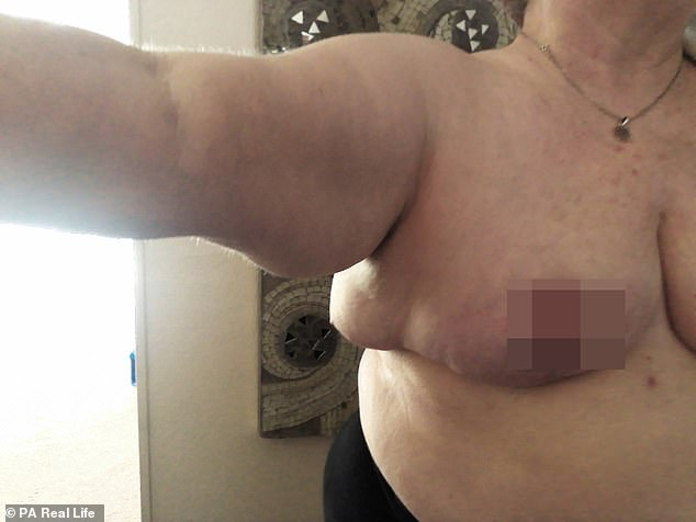 But, instead of the smaller bosom she was hoping for, Ms Johnson has been left with fat necrosis - a lump of dead and damaged tissue - under her armpit