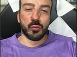 Guillaume Melanie, President of the Urgence Homophobie NGO bloodied after being attacked by thugs on the streets of the French capital