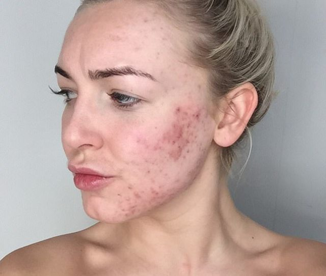 Developed Severe Adult Acne Four Years Ago And After Trying To Fix It With Dettol Cured It With Controversial Drug Roaccutane Seen In October  At